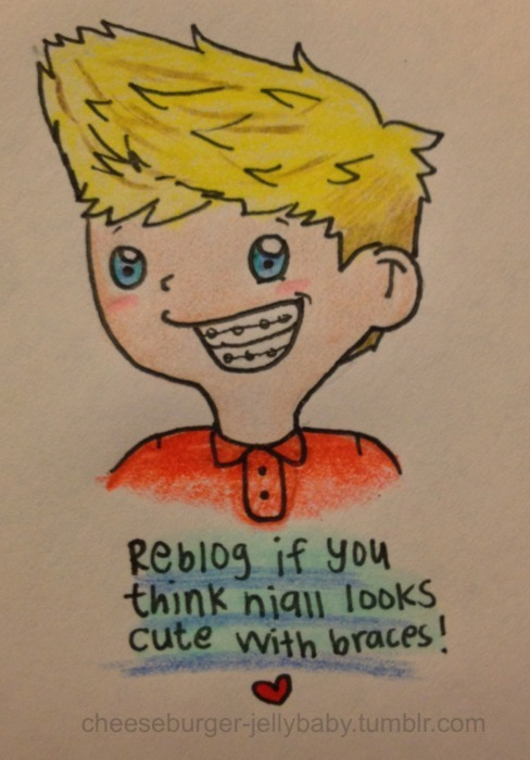 braces, cute, horan, niall, niall horan, one direction, smile