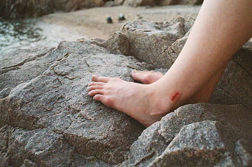 analog, beautiful, blood, bones, boy, bruise, cute, feet, grain, hipster, indie, legs, rocks, ugly